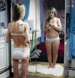 People with anorexia and body dysmorphic disorder have similar brain anomalies